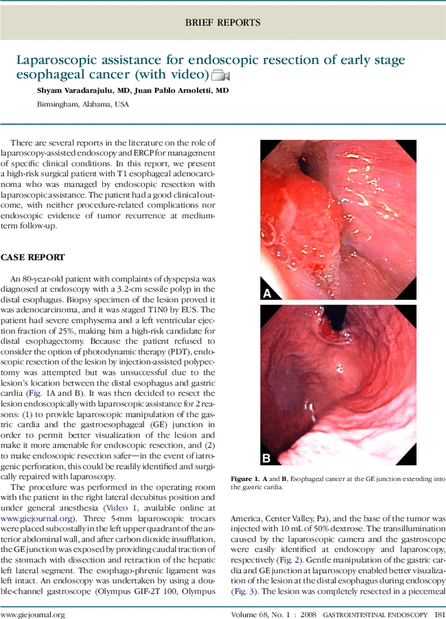 View Endoscopy Procedure: Laparoscopic Assistance For Endoscopic Resection Of Early