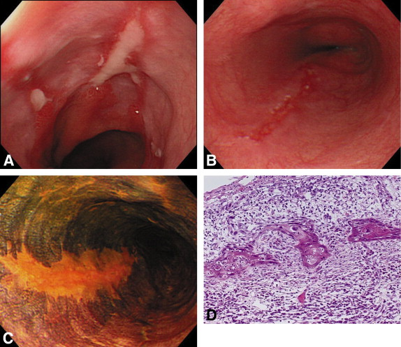 Early Esophageal Squamous Cell Carcinoma Mimicking Reflux Esophagitis