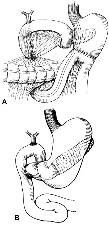 View Endoscopy Procedure: Endoscopy And ERCP In The Setting Of Previous Upper GI